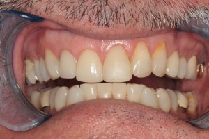 Before Porcelain Crowns and Veneers