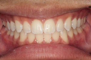 After Full Orthodontic Treatment
