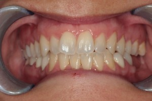 Before Full Orthodontic Treatment