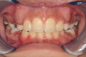 After Phase I Orthodontic Treatment