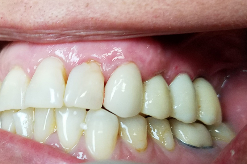 After Emax Crown, Implants with Bruxir Crowns and Sinus Lift