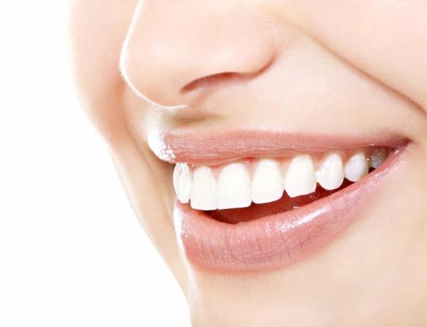 Teeth_Whitening_Chula_Vista-mai5sv0jq9d55x7bx9dm16glgmj3t846g8xrmu4u7s