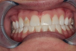 Before Porcelain Veneer