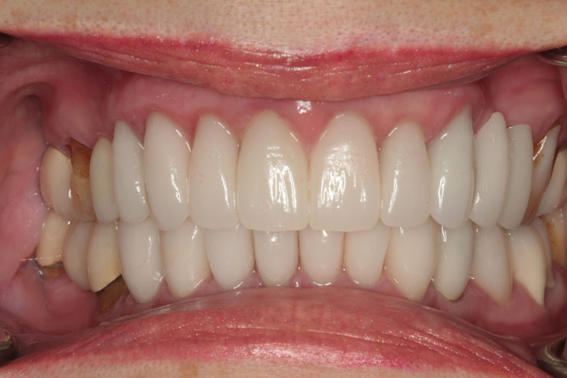 After Porcelain Crowns and Veneers