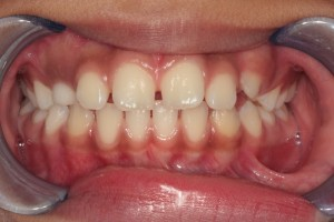 Before Phase I Orthodontic Treatment