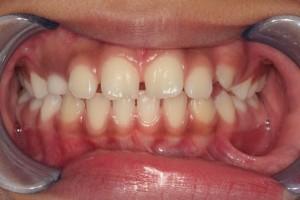 Before Phase I Orthodontic Treatment