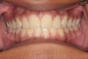 Before Full Orthodontic Treatment
