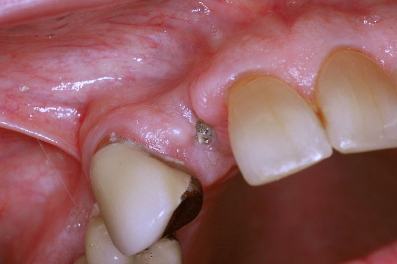 Single Implant with Crown
