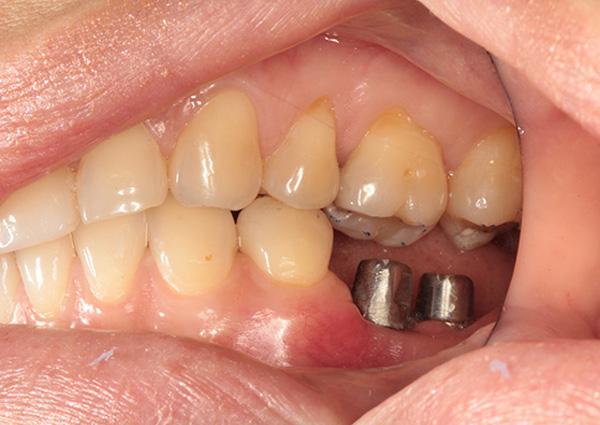 Implants Before