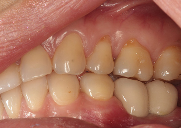Implants and Crowns After