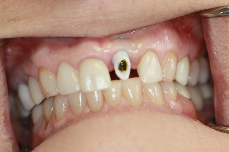 Before Emax Crown and Zirconia Custom Abutment